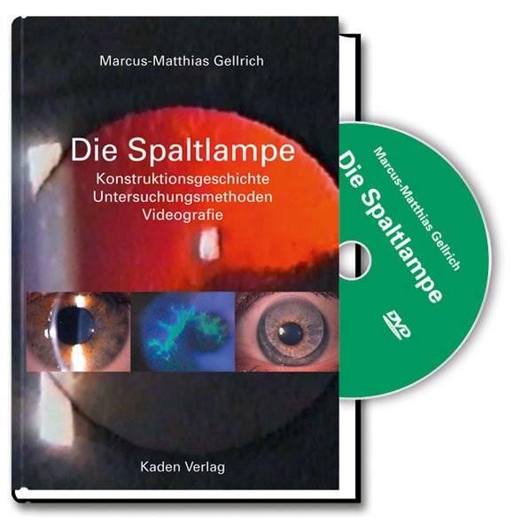 cover_Die_Spaltlampe