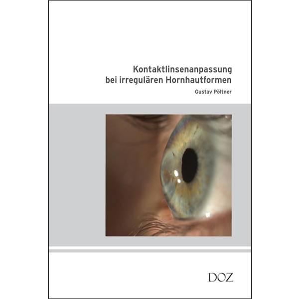 Kontaktlinsenanpassung bei irregulären Hornhautformen